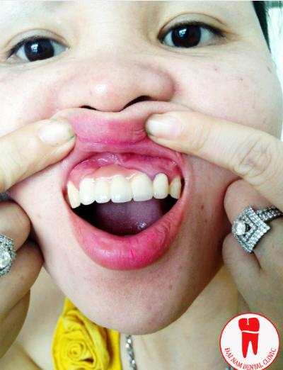 rang-dep-nho-ghep-xuong-va-cay-implant-1