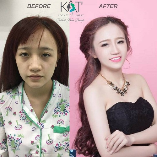 lam-moi-ve-dep-tai-kat-cosmetic-surgery-xin-bai-edit