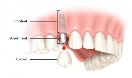 cam-ghep-implant-khong-dau-chi-trong-10-phut