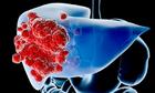 Kết hợp Fucoidan và nấm Agaricus trong hỗ trợ điều trị ung thư gan