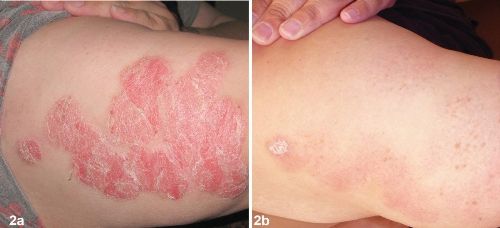 Hình ảnh trước và sau 8 tuần sử dụng sản phẩm Dr Michaels.