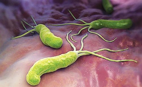 Vi khuẩn Helicobacter pylori.