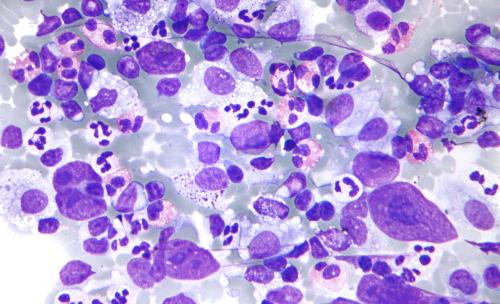 Lymphoma Hodgkin -ung thư bạch huyết dạng Lymphoma.