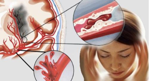 Tai biến mạch máu não là một trong những căn bệnh nguy hiểm.