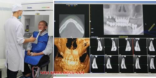 Lý do nên trồng răng Implant tại Nha Khoa Đông Nam (bài xin Edit) - 2
