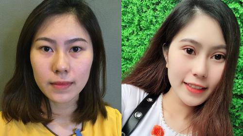 Sự thay đổi của chị em trước và sau khi cắt mí Mini Deep