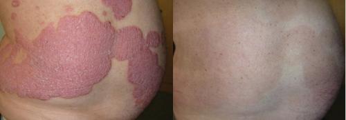 Trước và sau 8 tuần sử dụng sản phẩm Dr Michaels từ thảo dược.