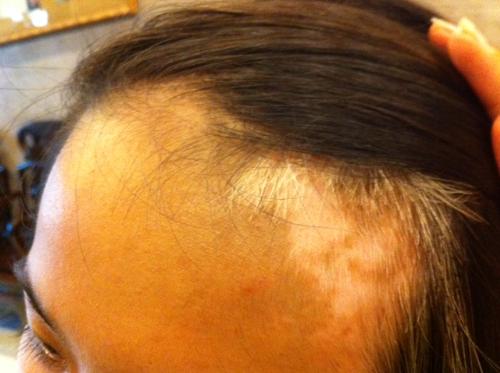 Bệnh Bạch Biến để loang lên mặt, trán& ảnh hưởng nhiều đến thẩm mỹ, Bảo Thanh Đường có thuốc hiệu nghiệm chữa dứt điểm.