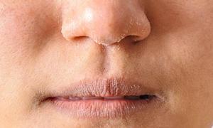 Dấu hiệu và cách chữa trị bệnh chàm môi