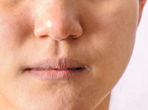 vùng da ở môi bị viêm nhiễm, xuất hiện chàm gây ra hiện tượng khô sần, nứt nẻ, ngứa ngáy và đau rát.