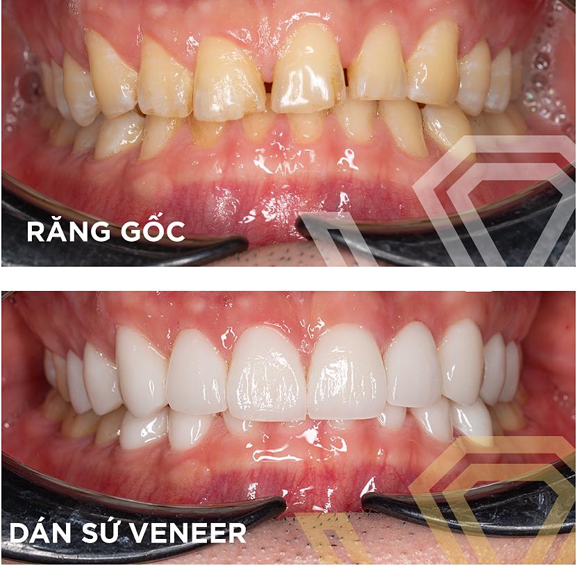 Phương pháp dán sứ Veneer không thay đổi hình dạng răng thật.