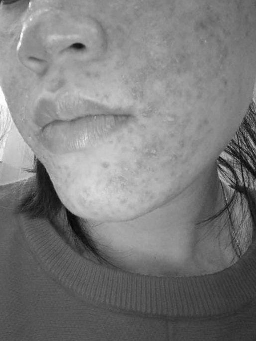 Da nhạy cảm, sưng đỏ khi bị nhiễm corticoid.
